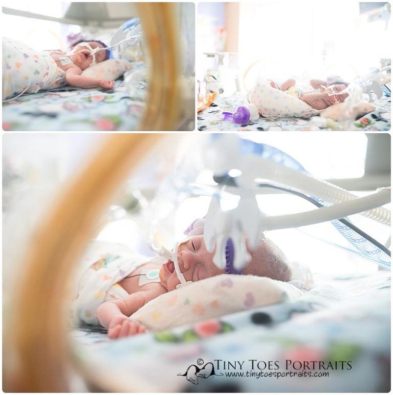 newborn girl in incubator at children's NICU